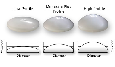 Breast Implant sizes by profile- Breast Enlargement