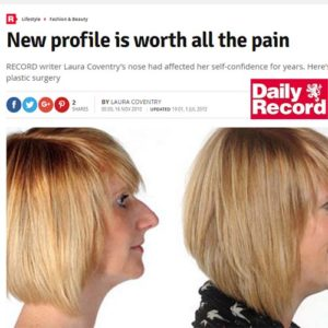 La Belle Forme nose Job Daily Record