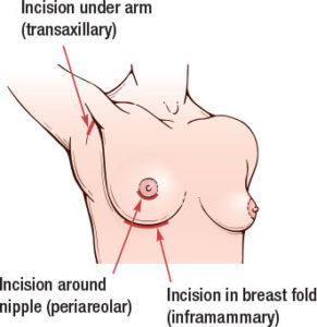 Breast surgery incisions - Allegan Breast Enlargement