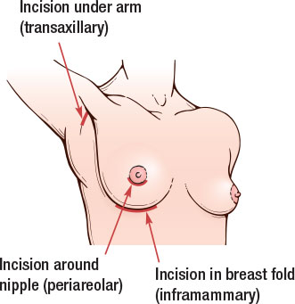 Breasy surgery incisions - Allegan