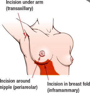 inframammary incision Breast Enlargement