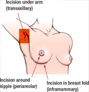 transaxillary incision Breast Enlargement