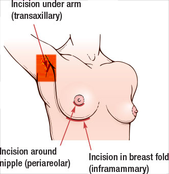 transaxillary incision