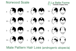 Norwood -hair loss