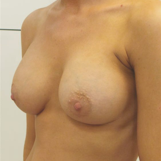 After Breast Augmentation 9804-a