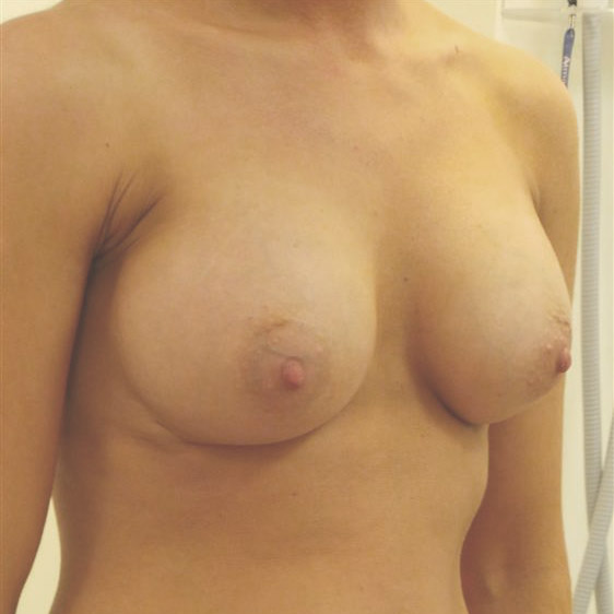 After Breast Augmentation 9804-b