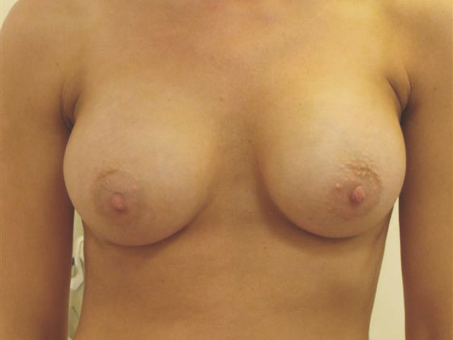 After Breast Augmentation 9804-c