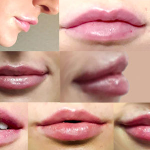 Lip Plumping at La Belle Forme