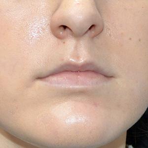 Natasha lips before treatment La Belle Forme