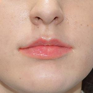 Natasha lips after treatment La Belle Forme