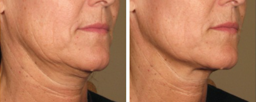 La Belle Forme, Ultherapy 2