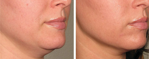 Ultherapy La Belle Forme 3