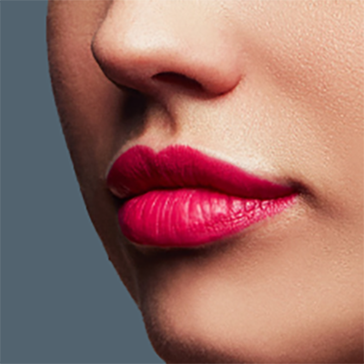 My First Lip Fillers - Natasha Collins at La Belle Forme