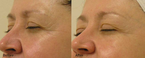 Crows Feet - Before and After