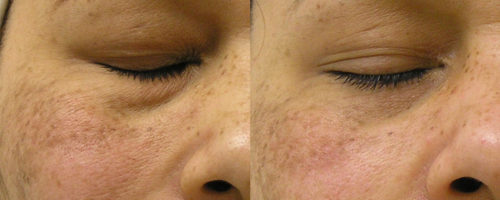La Belle Forme Dull Skin - Before and After