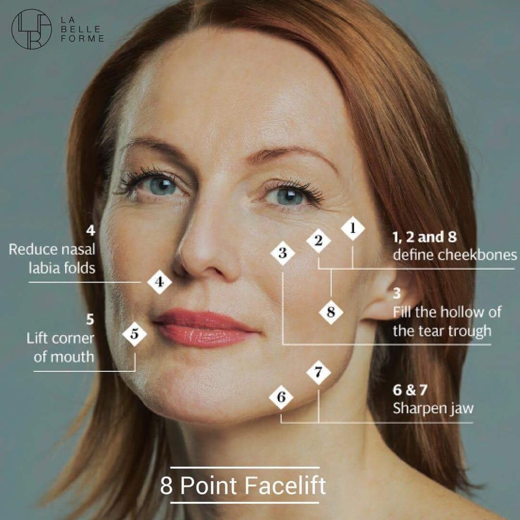 8 point face lift injection points