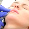 dermal fillers at UK top clinic La Belle Forme