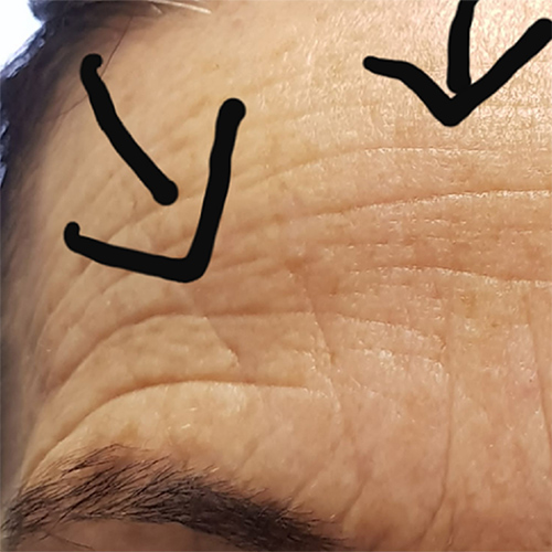 forehead before