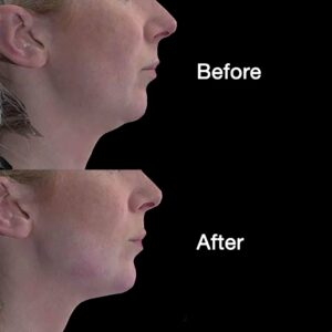 jawline before and after Volux at La Belle Forme