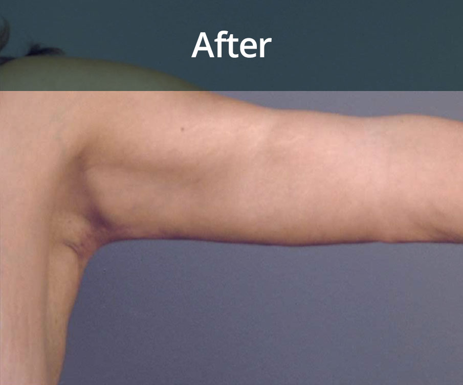 Arm Lift Surgery Glasgow After