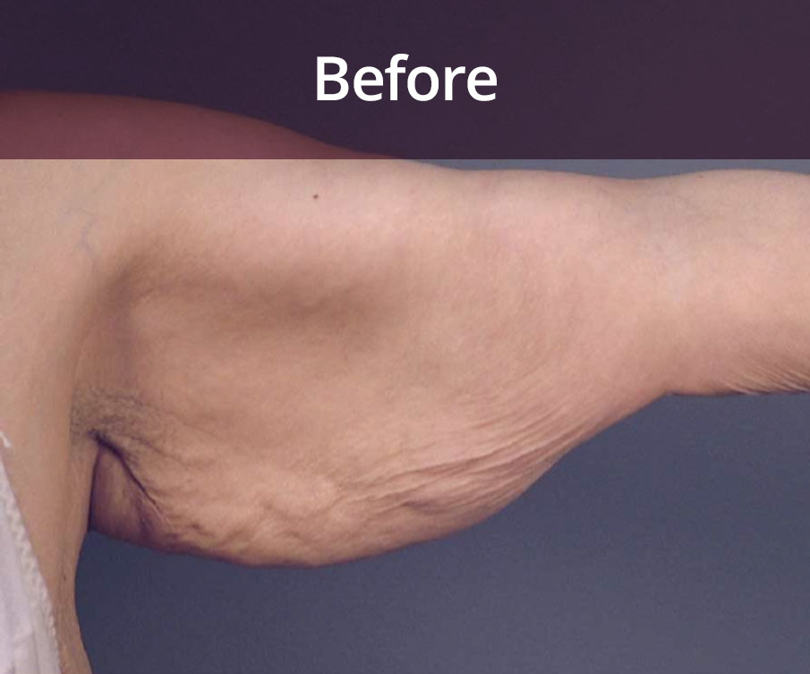 Arm Lift Surgery Glasgow Before