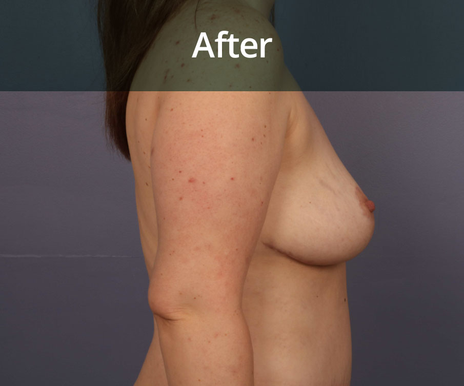 Breast Reduction Edinburgh After