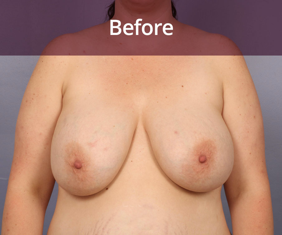 Breast Reduction Glasgow