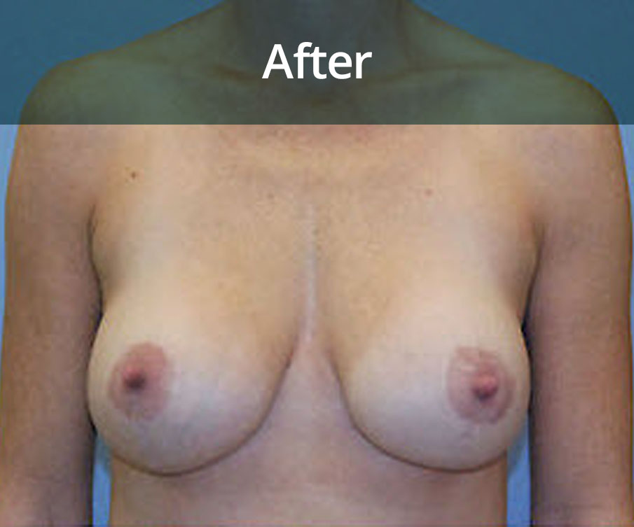 Breast Uplift Glasgow After