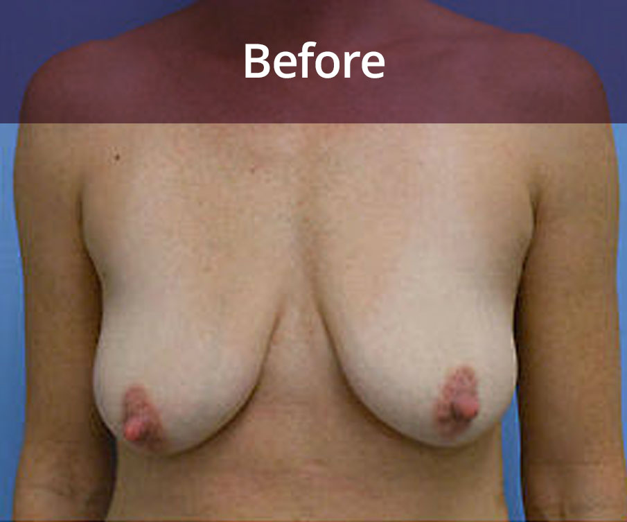 Breast Uplift Glasgow Before